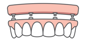Full-Arch Teeth Replacement