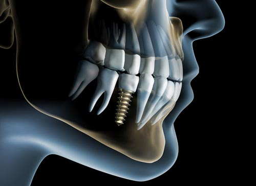 exceptional-dental-implants