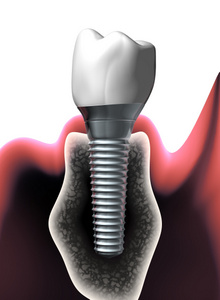 Dental implants and your diet