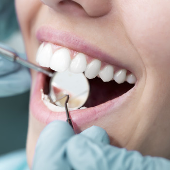 Young woman patient at dentist's office - Closeup