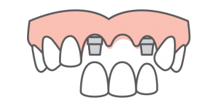 Single & Multi-Tooth Replacement