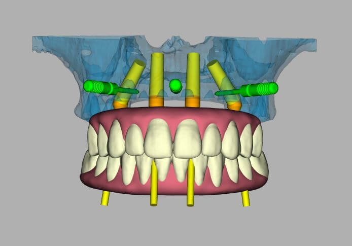 3d image of a denture